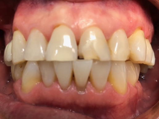Bergen Premiere Dentistry - Before & After